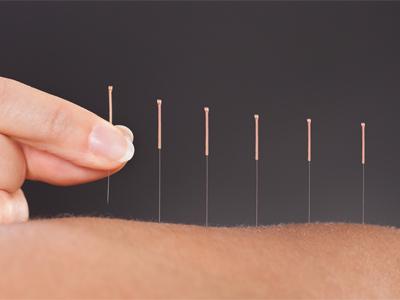 درمانهای طبیعی درد اعصاب