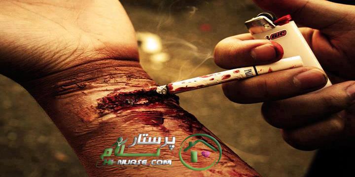 پرستار سالمند در منزل | فواید سیگار | پرستار سلام | پرستار کودک