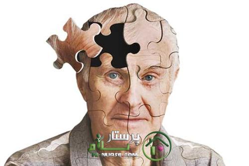 آلزایمر | خدمات پرستاری پرستار سلام