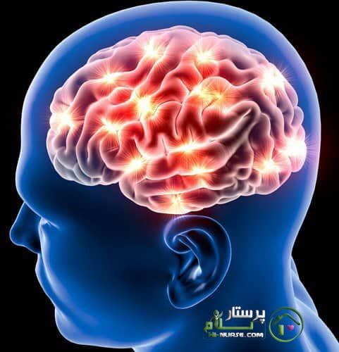 سکته مغزی | پرستار سالمند | پرستار سلام