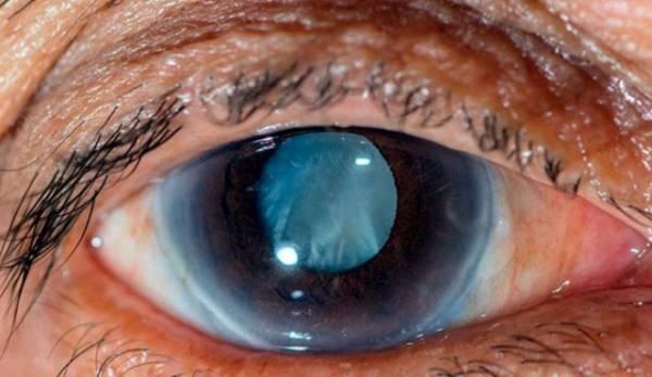 همه چیز درباره گلوکوم یا آب سیاه چشم